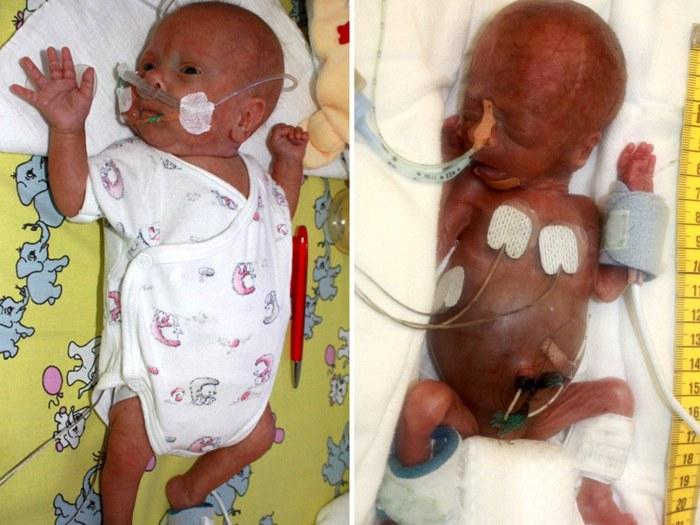 Menor bebê do mundo Alemanha